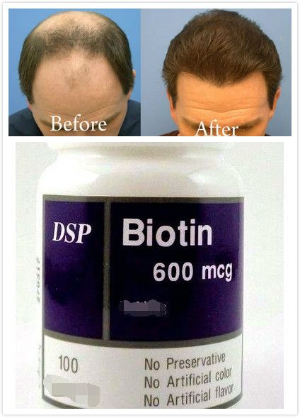 Shipping Good Hair Growth Vitamins Supplements Long Fast Biotin S Galary For And