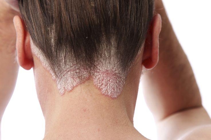 Dermatitis: En qué consiste  y sus tipos - http://bit.ly/1LHab5s