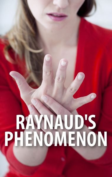 Dr Oz explained the symptoms of Raynaud's Phenomenon, a surprisingly common condition involving exposure of the hands to common cold temperatures. http://www.recapo.com/dr-oz/dr-oz-advice/dr-oz-raynauds-phenomenon-cold-hands-hurt/