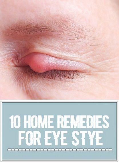 10 Home Remedies for Eye Stye