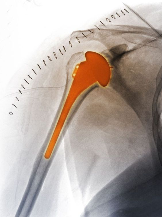 What Does a Reverse Shoulder Replacement Mean?