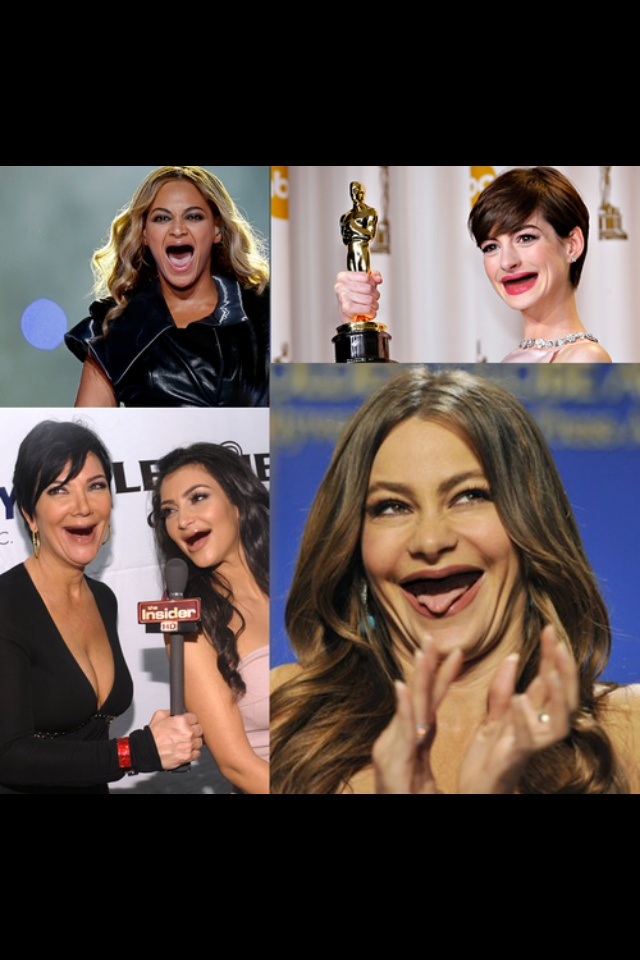 Having a bad day? Here's some celebrities without any teeth!!