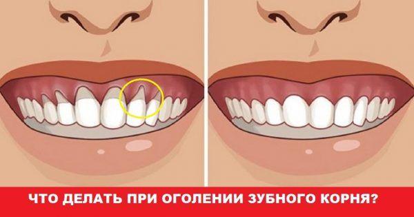 Оголилась шейка зуба? Узнай, как вернуть десну обратно! — В Курсе Жизни
