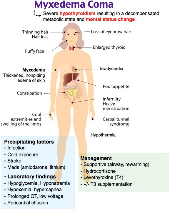 Hypoglycemia Natural Treatment