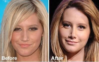 Collection of photos and articles about nose job before and after. We also enjoy sharing celebrity nose jobs before and after photos.