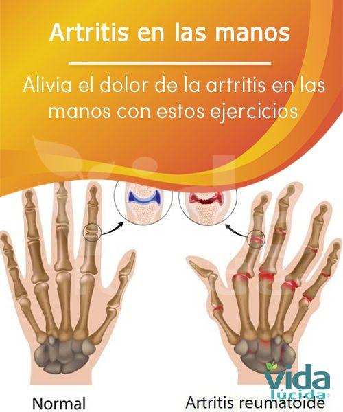 8 ejercicios para aliviar el dolor de la artritis en las manos.