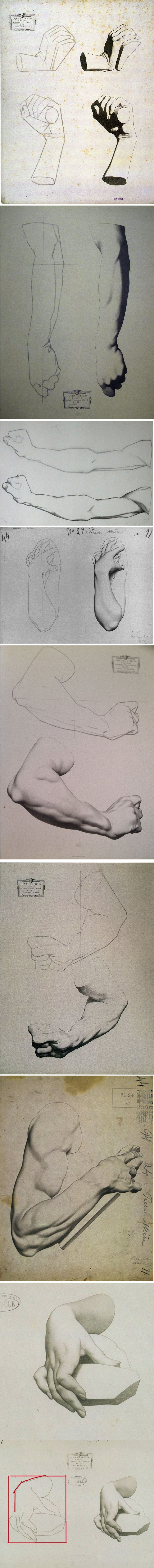 plaster hand