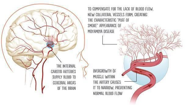 Understanding Moyamoya Disease in Children - Stroke Connection Magazine - Winter 2014