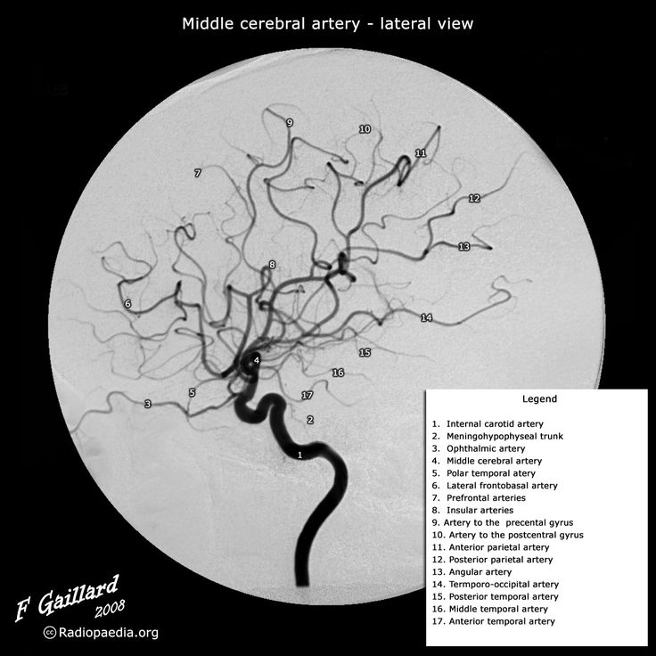 181 best Neuroradiology images on Pinterest | Medical, Radiology and ...
