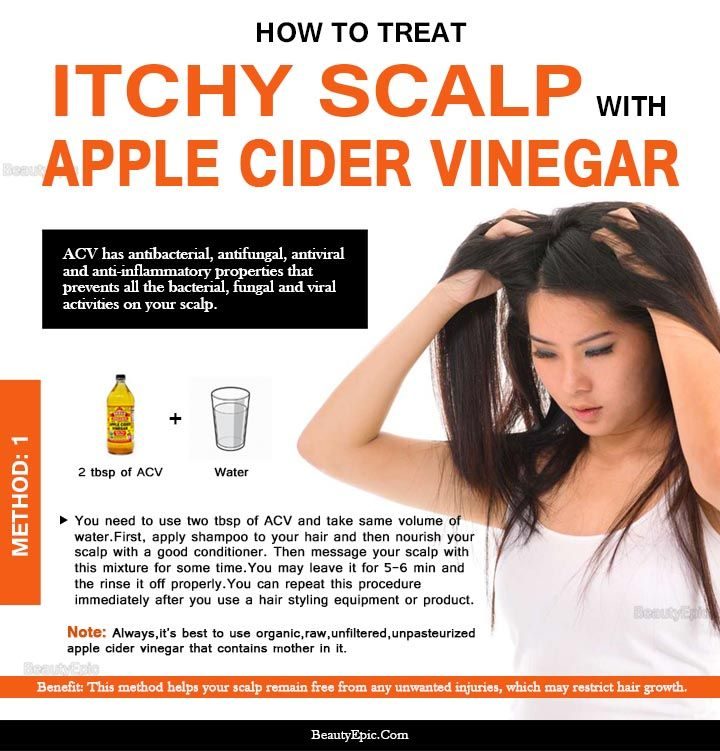 How To Use Apple Cider Vinegar For Itchy Scalp Dandruff Relief Dandruff Remedy Apple Cider Dry Itchy Scalp Dry Scalp Treatment