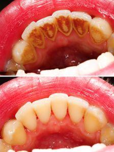 Clínica Dental Segovia – Castilla y León – Dentista Segovia ...