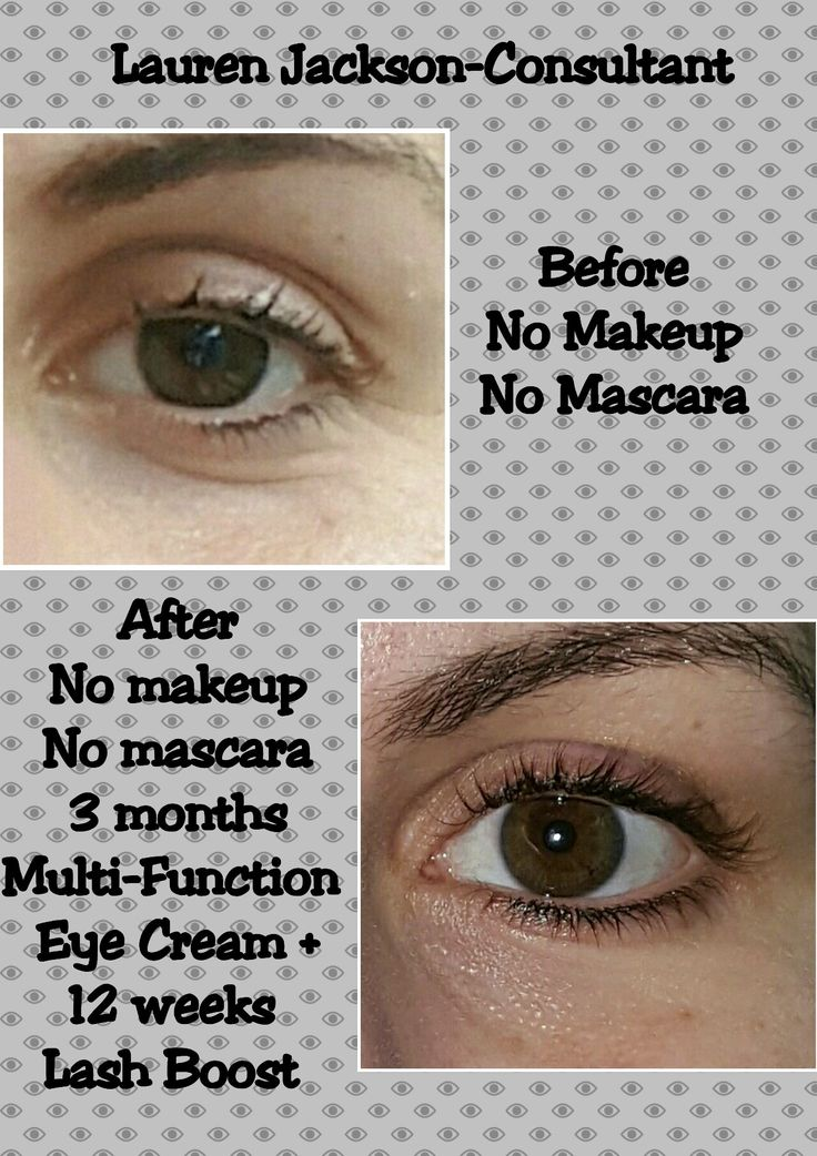 Rodan + Fields. Multi-Function Eye Cream results. Www.laurenmjackson.myrandf.com  #changingskinchanginglives #rodanandfields #skincare #loveyourskin #results #beautifulskin