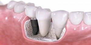Deciding to have dental implants can be quite big decision to take and it is important to consider all the pros and cons of treatment so you know exactly what to expect.