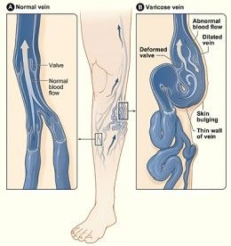 Apple Cider Vinegar Will Cure Varicose Veins  Steps: 1. Rub undiluted apple cider vinegar against the veins both morning & at night. 2. Mix 2 tsp of apple cider vinegar in a glass of water & drink every day.
