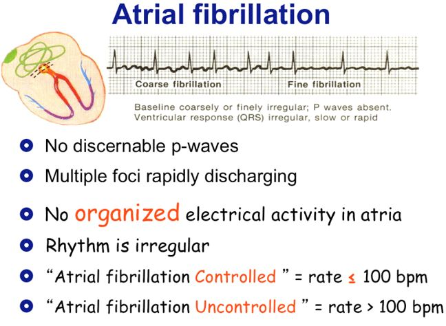 Atrial fibrillation and nursing considerations