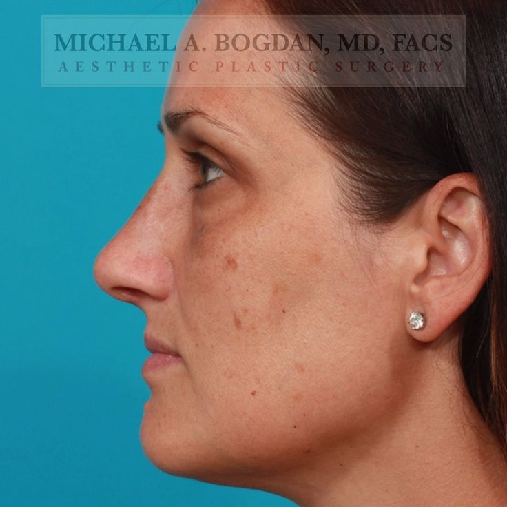 This finesse rhinoplasty was performed to create a more
