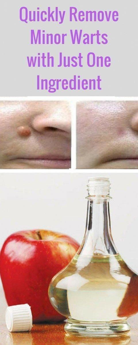 five Easy Dwelling Treatments To acquire Rid Of Skin Warts #WhatCausesWarts #HowDoYouRemoveWarts #HowToRemoveWartsFast