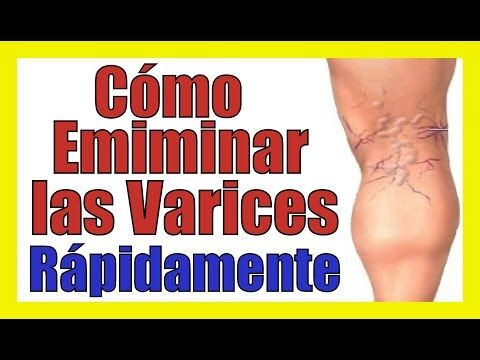 REMEDIOS CASEROS PARA QUITAR LAS VARICES Tratamiento Natural Para Eliminar Varices Rapido - YouTube