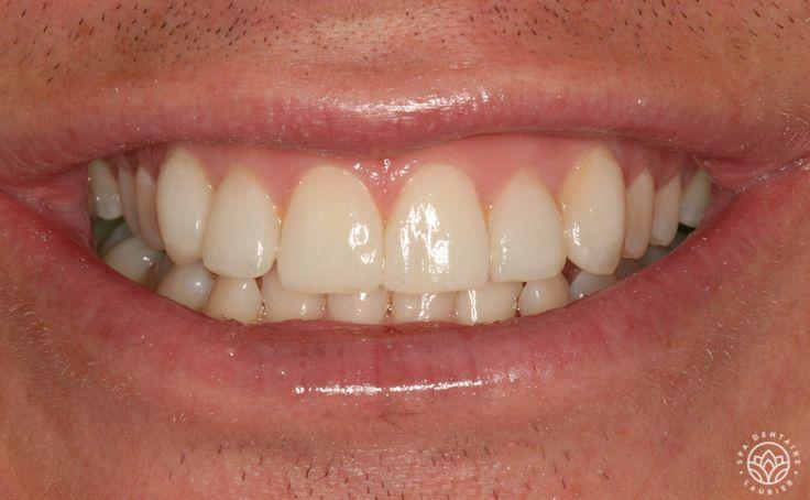Après  Ce coureur automobile a pu régler son problème d'espaces entre les dents grâce à six facettes de composite.