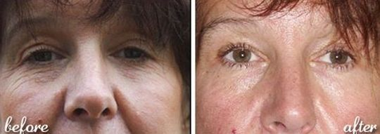 The Facelift Without Surgery: Attempt Face Toning Methods For A More Youthful Appearance