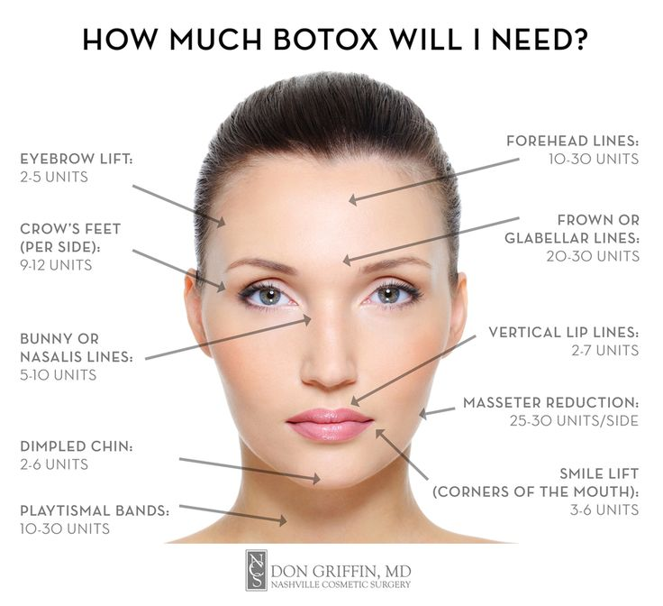 25 best ideas about botox injections on pinterest botox injection sites botox face and botox. Black Bedroom Furniture Sets. Home Design Ideas