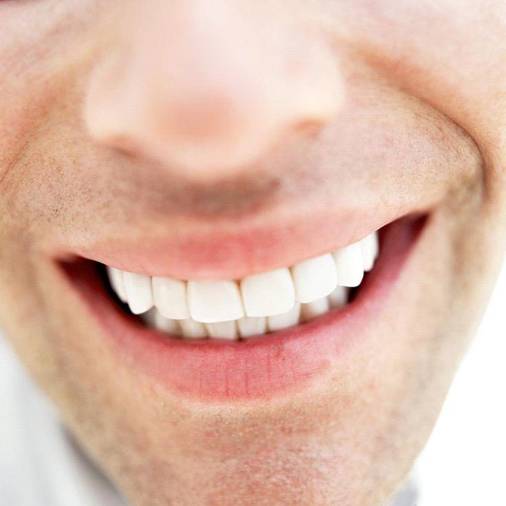 En super side omkring tandblegning.