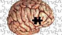 Tratamientos para la pérdida de memoria en el Alzheimer - Uno de los síntomas característicos de esta enfermedad es la pérdida de memoria, provocada por la muerte de las células cerebrales y el deterioro de las conexiones que existen entre ellas. Actualmente existen varios tratamientos para la pérdida de memoria de los pacientes de Alzheimer: http://saludtotal.net/tratamientos-para-la-perdida-de-memoria/