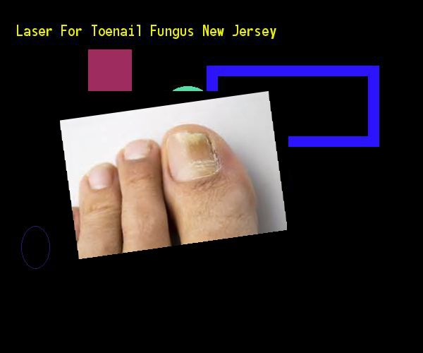 Laser for toenail fungus new jersey - Nail Fungus Remedy. You have nothing to lose! Visit Site Now