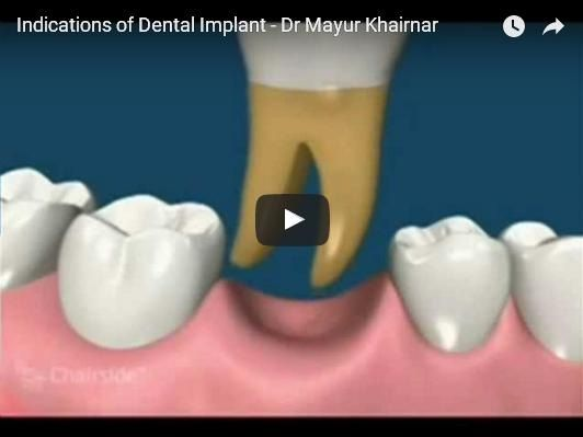 Find the Right Dental Care Center for #Dental #Implant and Implant Fixed Denture
