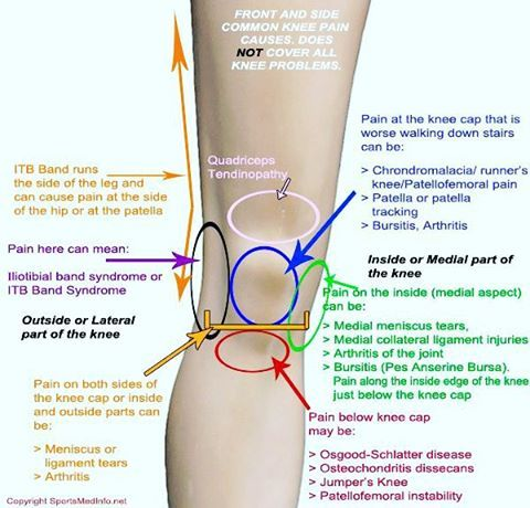 """Knee Pain #workout #healthyliving #training #excerciseguide #fitnessaddict #fithealthyworkouts #fitgirl #crossfit #infographics #findyourflow #active…"""
