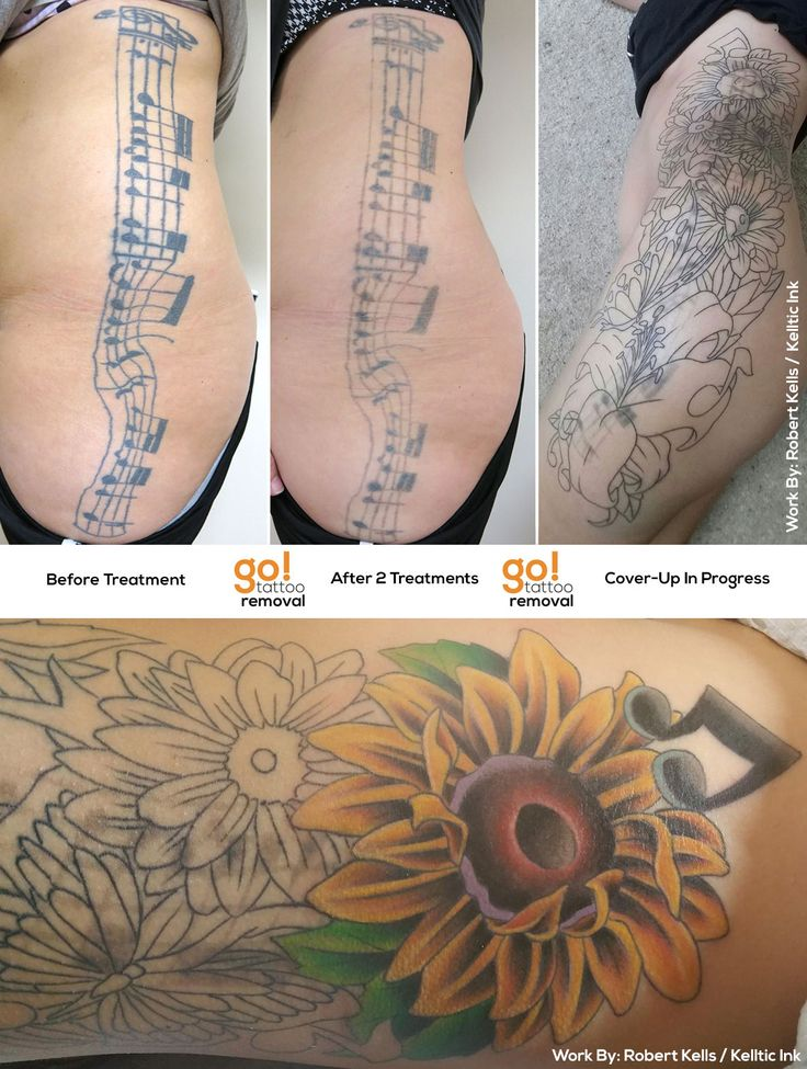 96 best tattoo removal to tattoo cover up images on for How to cover up tattoos for work