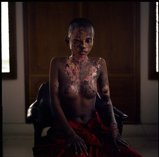BANGLADESH. June 2005. Nobisa Begam. 15 years old. Photographed three days after acid was thrown in her face for refusing a marriage proposal.