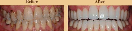 Dental Veneers Dentistry Bowling Green KY