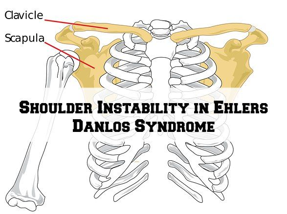 Shoulder Instability in Ehlers Danlos Syndrome