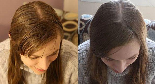 J'ai commencé mon expérience, en lavant mes cheveux avec du bicarbonate de soude et du vinaigre pendant un ... >>