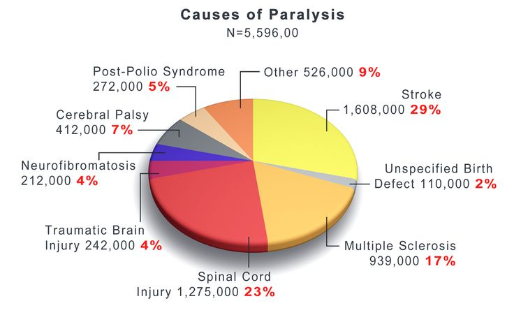 Image pie chart showing the different causes of paralysis.