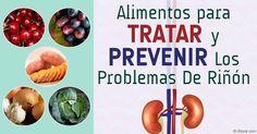 Para proteger la función renal, mantenga estos 3 factores básicos en mente: eliminar las proteínas, restringir la fructosa, y beber agua pura y limpia. http://articulos.mercola.com/sitios/articulos/archivo/2016/02/15/alimentos-y-hierbas-para-los-rinones.aspx