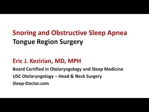 Genioglossus Advancement Surgery for Sleep Apnea