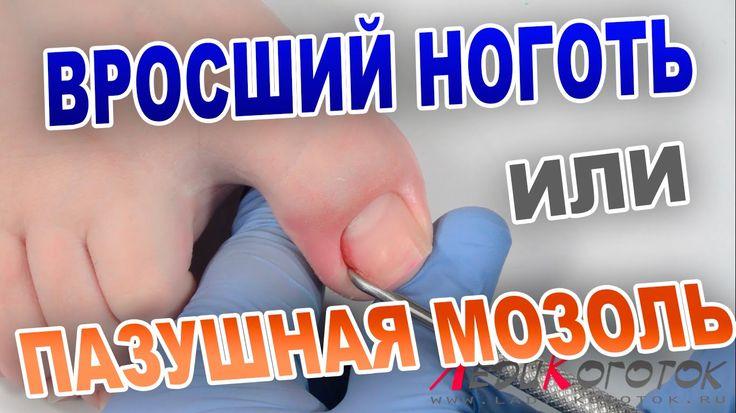 Пазушная мозоль или Вросший ноготь? Лечение!