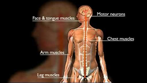 Collection of disorders particularly affecting the function of those neurons in our body which control our voluntary actions such as walking, speaking, and swallowing is called motor neuron disease.