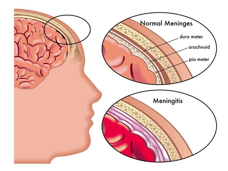meningitis an inflammation of the membranes meninges