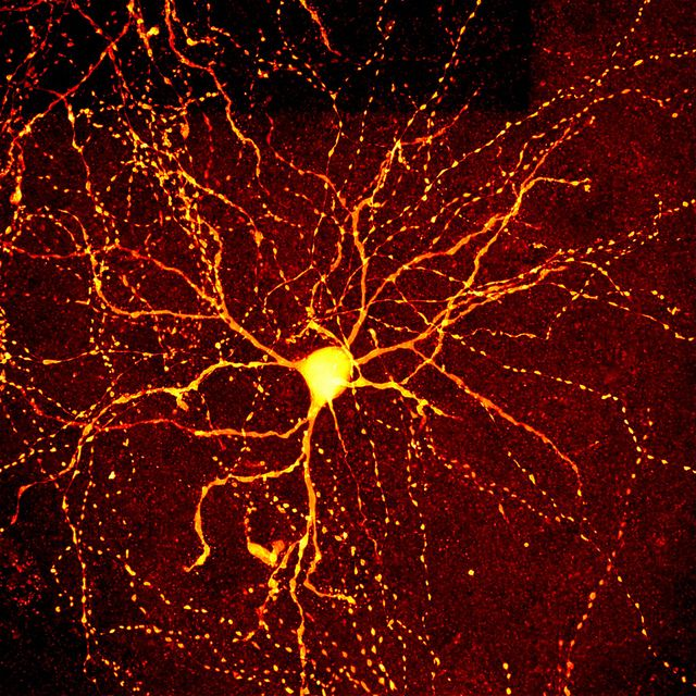 """""""Brains are gorgeous at the right magnification"""", says Mark Miller on his """"neuro"""" set of photos in flickr. Self-described as an intracellular recording artist, Miller shows images of a mouse's neuronal network. Covering different areas of the brain such as the cingulated cortex or motor cortex, the images are quite impressive, particularly since the neurons connecting in the brain resemble the large-scale structure of the universe."""