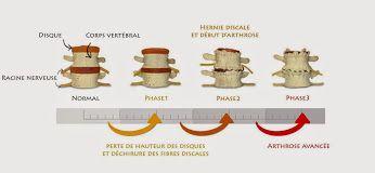 L'arthrose, ça donne quoi ?  CANG Amandine, Chiropracteur - Bio - Google+