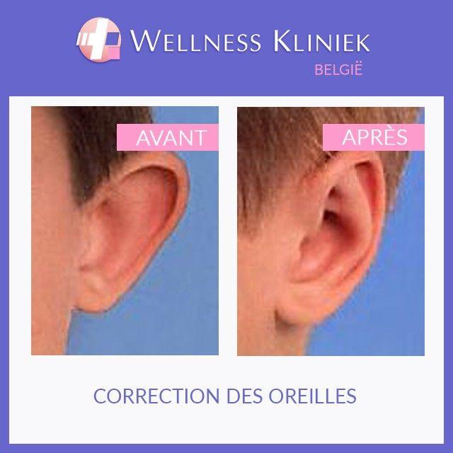 Correction des des oreilles décollées – oreilles en feuille de chou (otoplastie). Cette opération est possible dès l'âge de 6 ans.