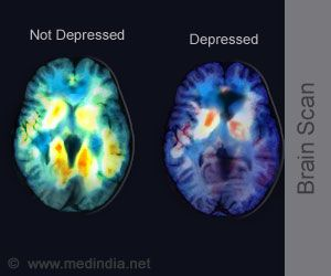 PET Scan of the Brain may Predict Treatment Outcome in Depression  This is the photo I was telling you about the other day. metabolism boost science