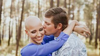 """""""Fue lo más difícil que hice en mi vida"""": Makenzee Meaux, la mujer de 21 años que compartió su alopecia en internet - https://www.vexsoluciones.com/noticias/fue-lo-mas-dificil-que-hice-en-mi-vida-makenzee-meaux-la-mujer-de-21-anos-que-compartio-su-alopecia-en-internet/"""