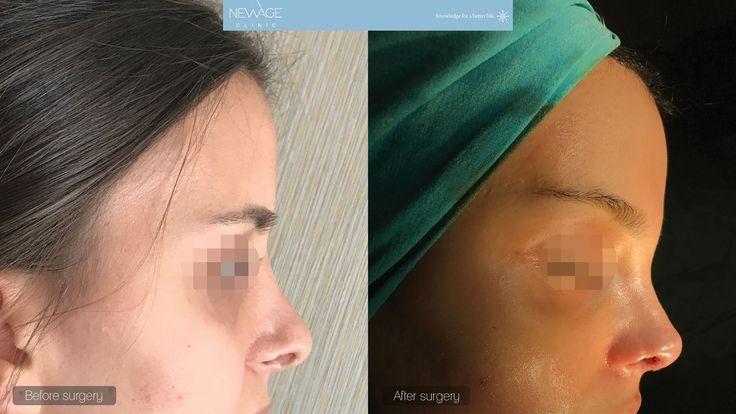 Rhinoplasty Surgery performed by Özge Ergün, MD  /// For more information 📲 WhatsApp: 0090543 470 47 09 ///  #PlasticSurgery #NoseJob #Rhinoplasty #Aesthetics #beauty #estética #cirugíaplástica #estetica #chirurgiaplastica #Ästhetische #plastischeChirurgie #chirurgieplastique #Schönheit #rinoplastia #鼻形成術 #整形手术 #جراحةالتجميل #隆鼻 #코성형술 #성형수술 #næsekorrektion #ринопластика #пластичнаоперација #realself #Nasenkorrektur #Rhinoplastie #Rinoplastica #Näsplastik #medicaltravel