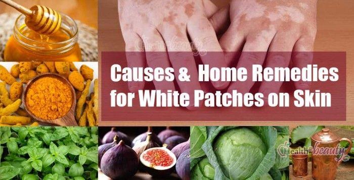Best Home Remedies to Get Rid of White Patches on Skin, Vitiligo Causes #WhitePatches #HomeRemedies #Vitiligo