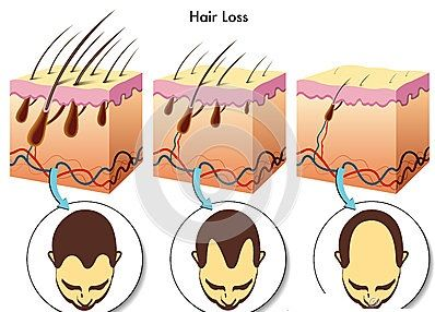Baldness is caused by hair loss and hair thinning.Pattern baldness is more common in middle aged men, where loss of hair is on the top, but not on the sides or back of the head. This kind of baldness is technically called as androgenic alopecia.   FUE hair transplant is best too overcome baldness. For more consultation, Call at 9815727418.