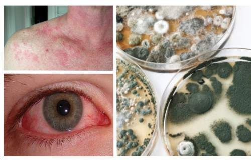 16 Signs You Have Mold Illness And What To Do About It Molds Is How Can People Get Moldy